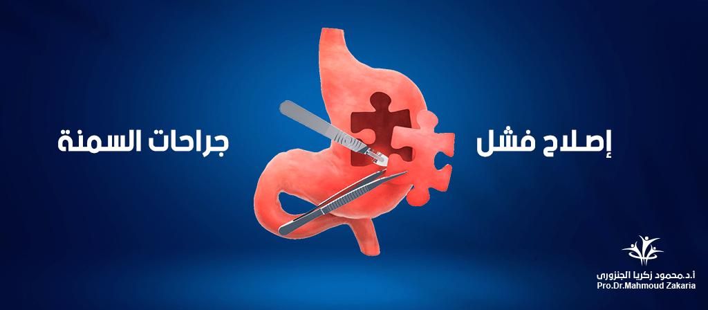 عمليات اصلاح فشل جراحات السمنة