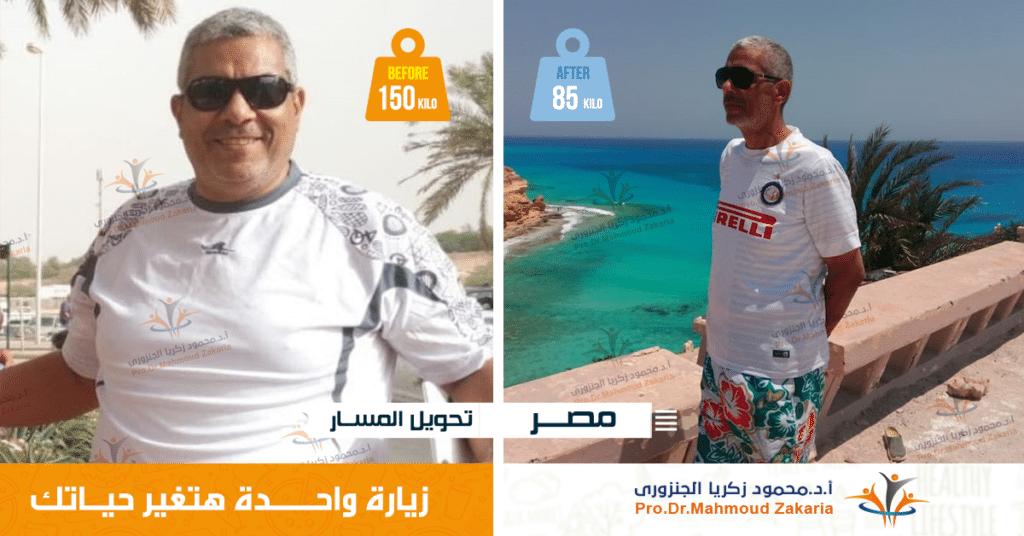 أكبر جراح سمنة فى مصر|دكتور تكميم معتمد