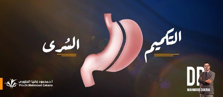عملية التكميم السُرى ( فتحة واحدة لتقليل الألم)
