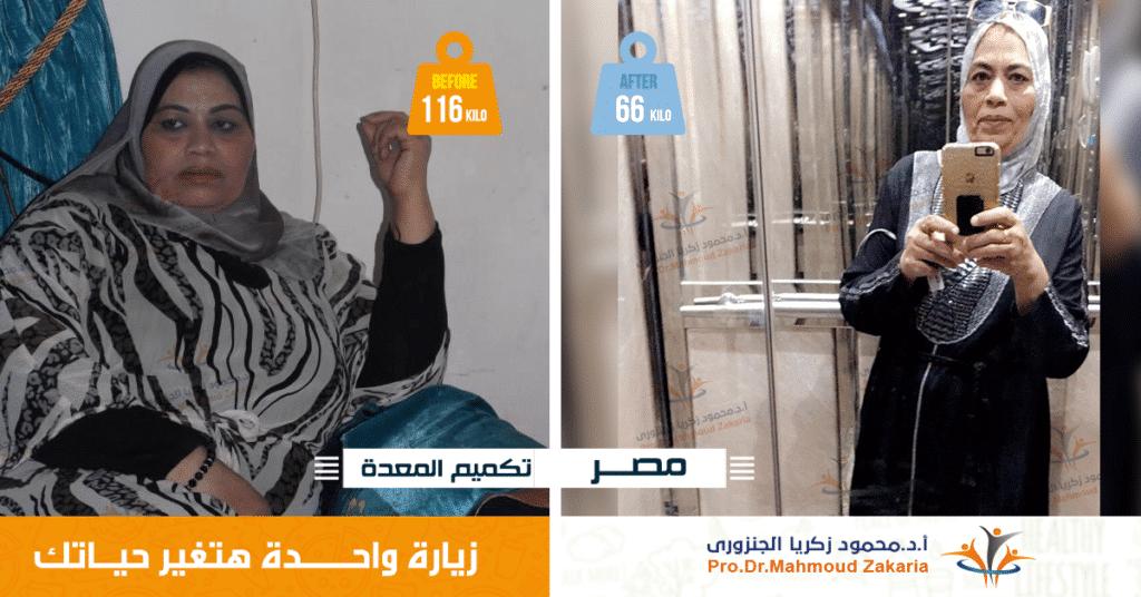 أفضل دكتور تكميم معدة فى مصر2020(قصص نجاح)