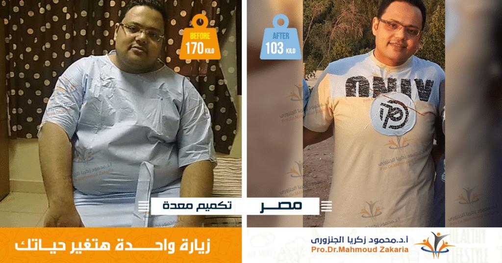 رامى خسر 68 كيلو من وزنه بعد تكميم المعدة غيرت حياته
