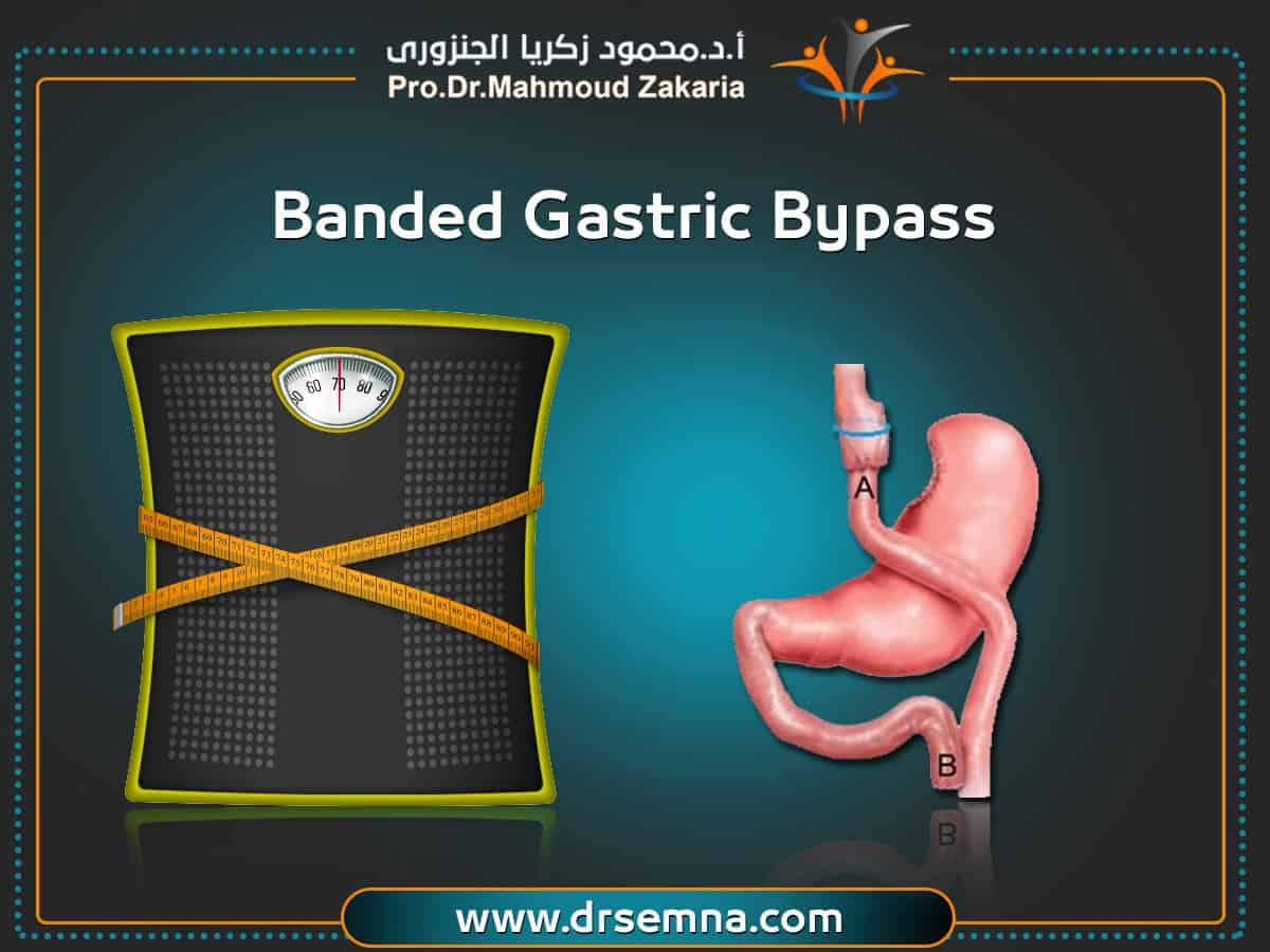 Banded Gastric Bypass