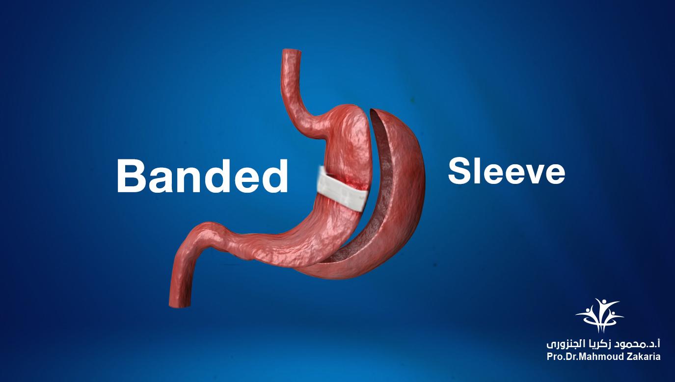 Banded Sleeve Gastrectomy