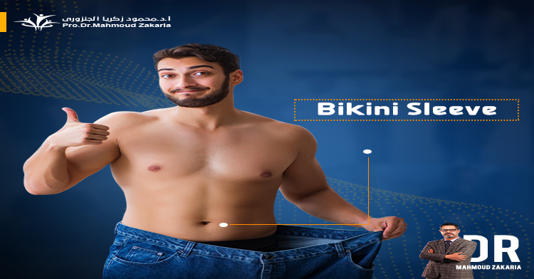Bikini-Sleeve-surgery-price
