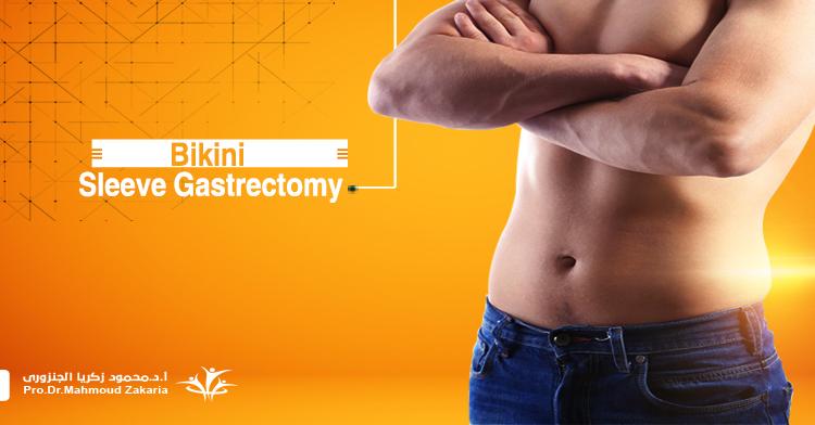 Bikini Sleeve gastrectomy