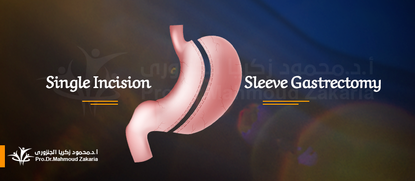 Single Incision Sleeve Gastrectomy