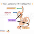 Sleeve-Gastrectomy-with-Transit-Bipartition