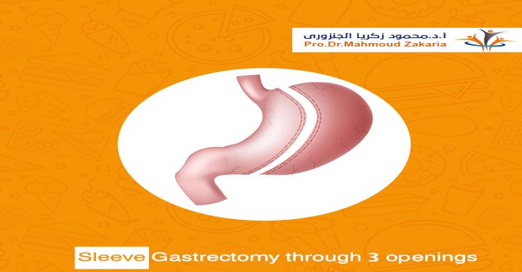 Sleeve gastrectomy through 3 ports