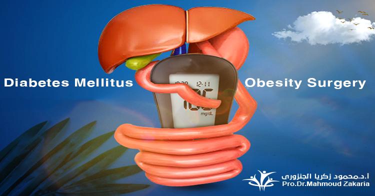 Surgeries for Diabetes Mellitus