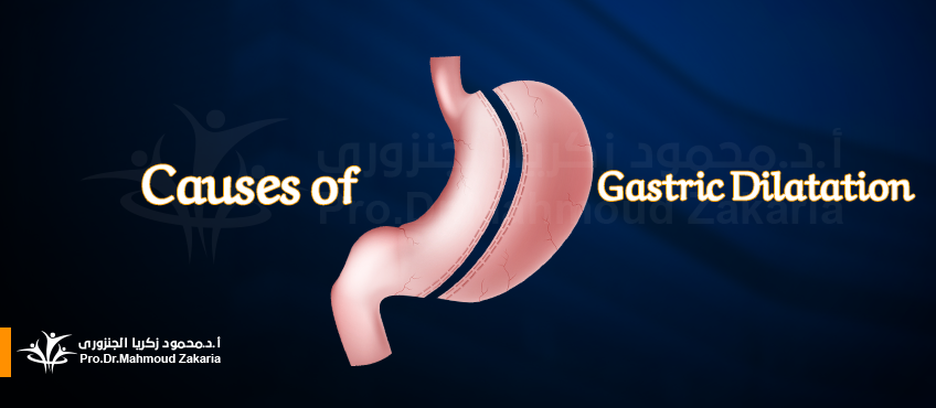 Increased volume (distention) of the stomach after bariatric surgery
