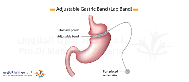 Adjustable- Gastric- Band