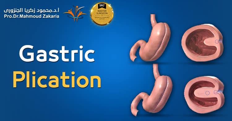 Laparoscopic Gastric Plication Surgery